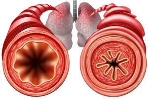 Bronchite Asmatica
