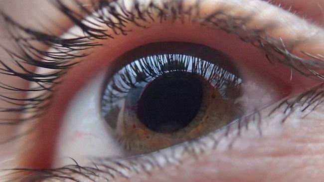 Glaucoma Sintomi