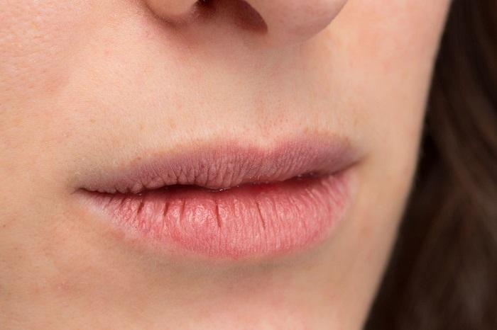 Labbra screpolate